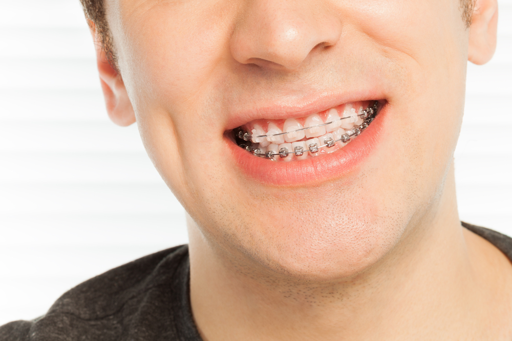 Traditional Braces Vs. Invisalign