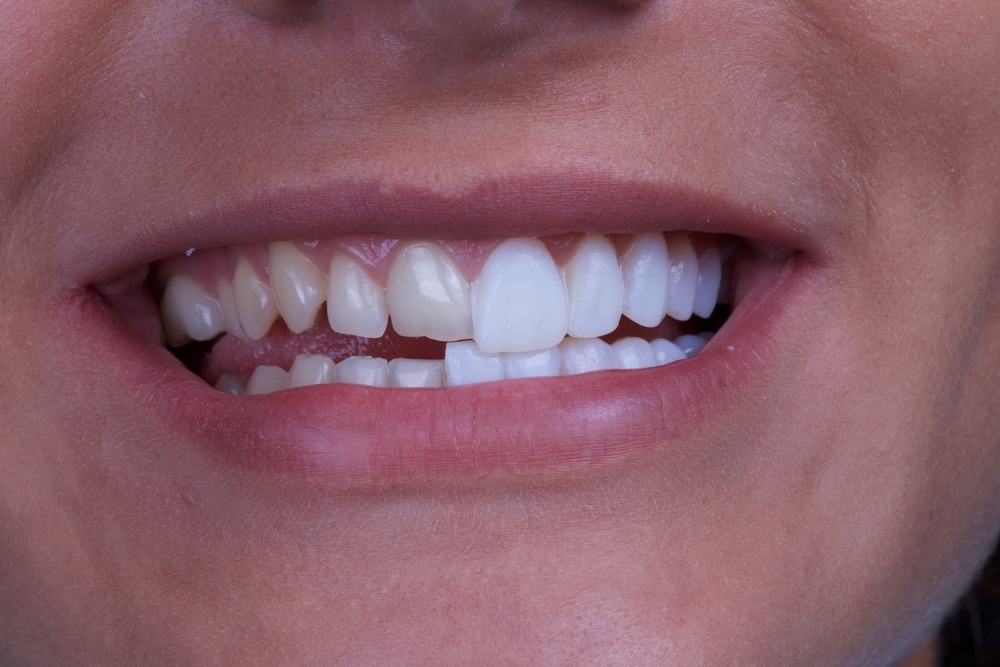 Veneers vs. Lumineers