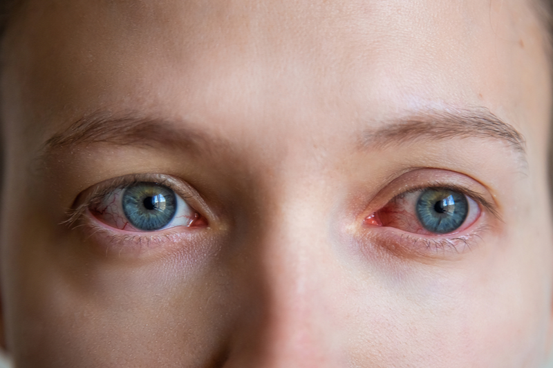 Seasonal Allergies And The Eyes