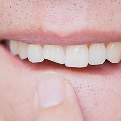 Cracked / Broken Teeth
