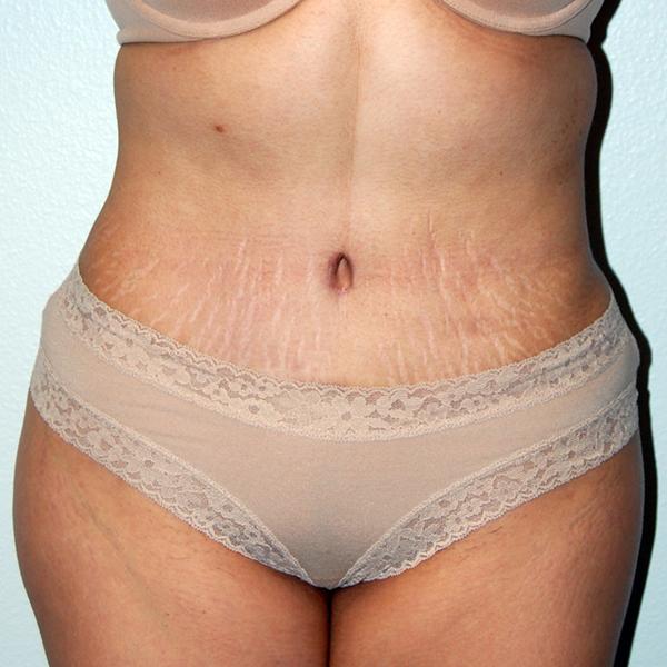After Abdominoplasty