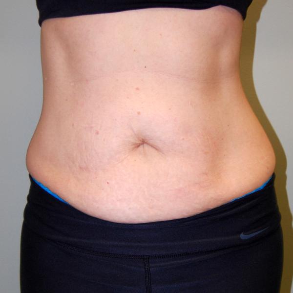 Before Abdominoplasty