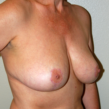 After Breast Mastopexy