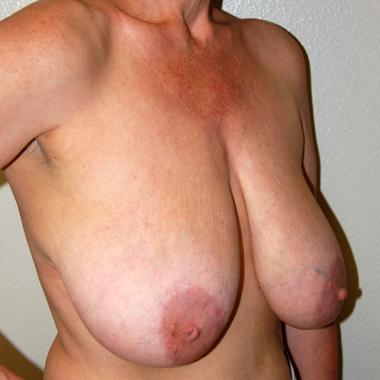 Before Breast Mastopexy