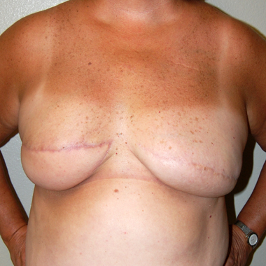 After Breast Reconstruction Latissimus