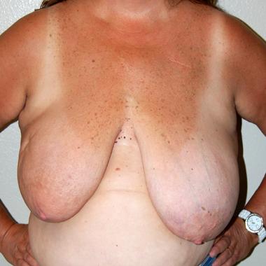 Before Breast Reconstruction Latissimus