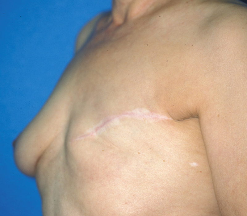 Before Breast Reconstruction TRAM