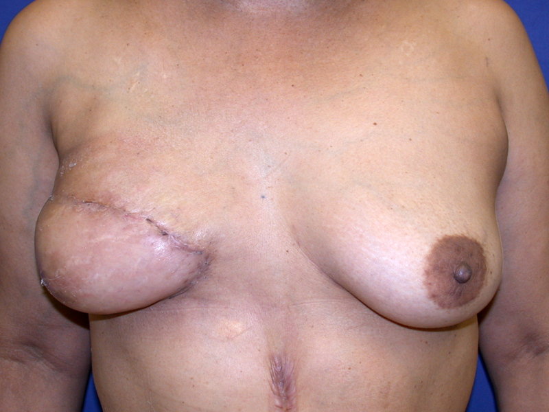 After Breast Reconstruction TRAM