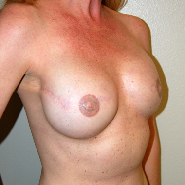 After Nipple Reconstruction
