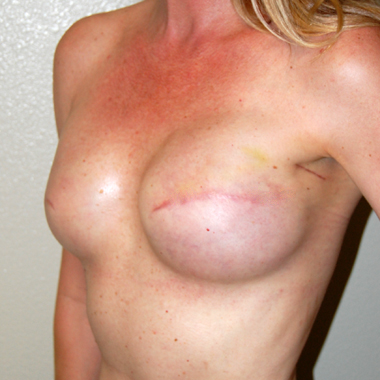 Before Nipple Reconstruction