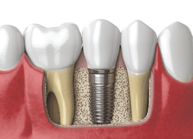 dental implant supported denture