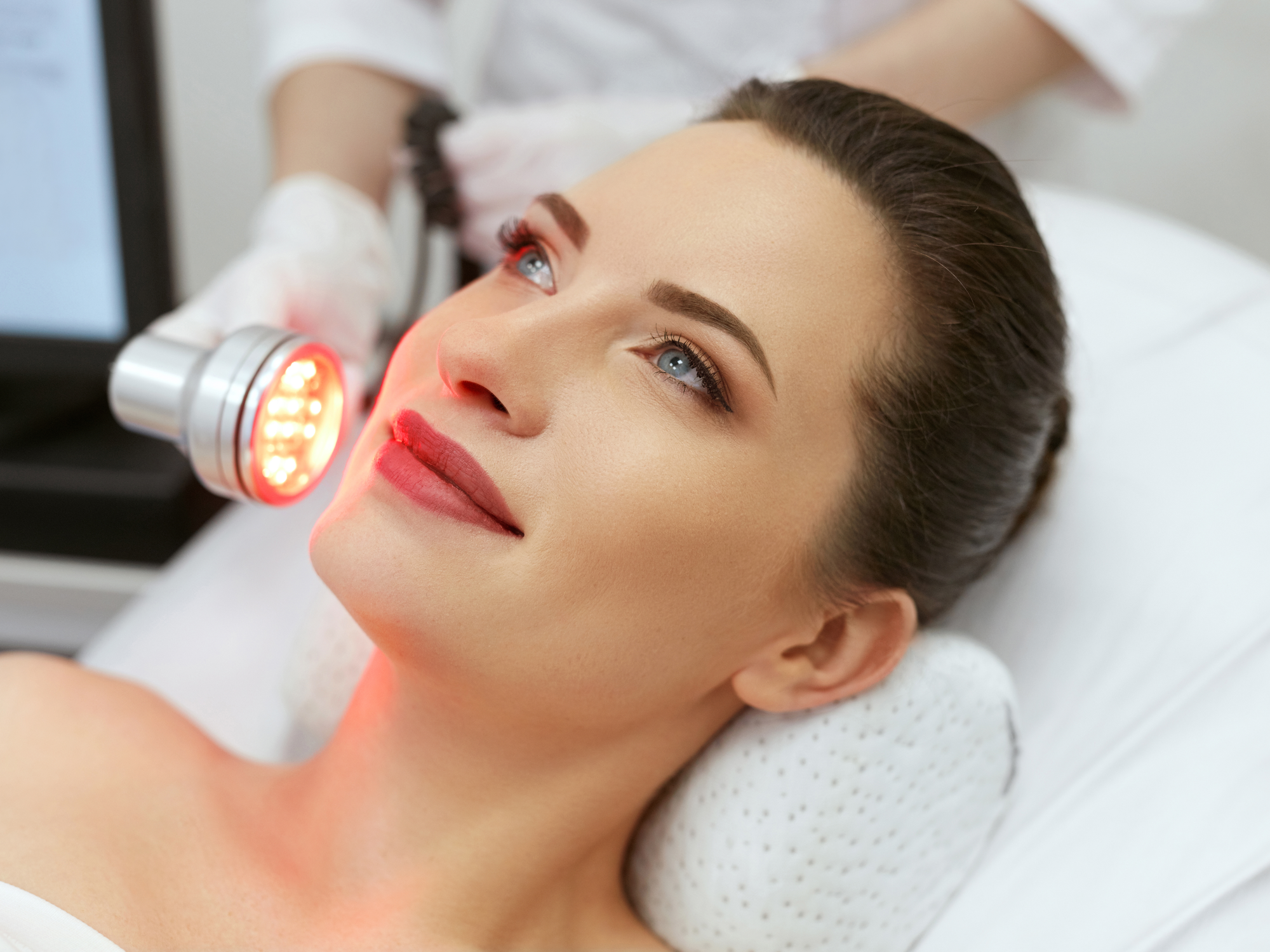 How LightStim Can Help With Acne Scars