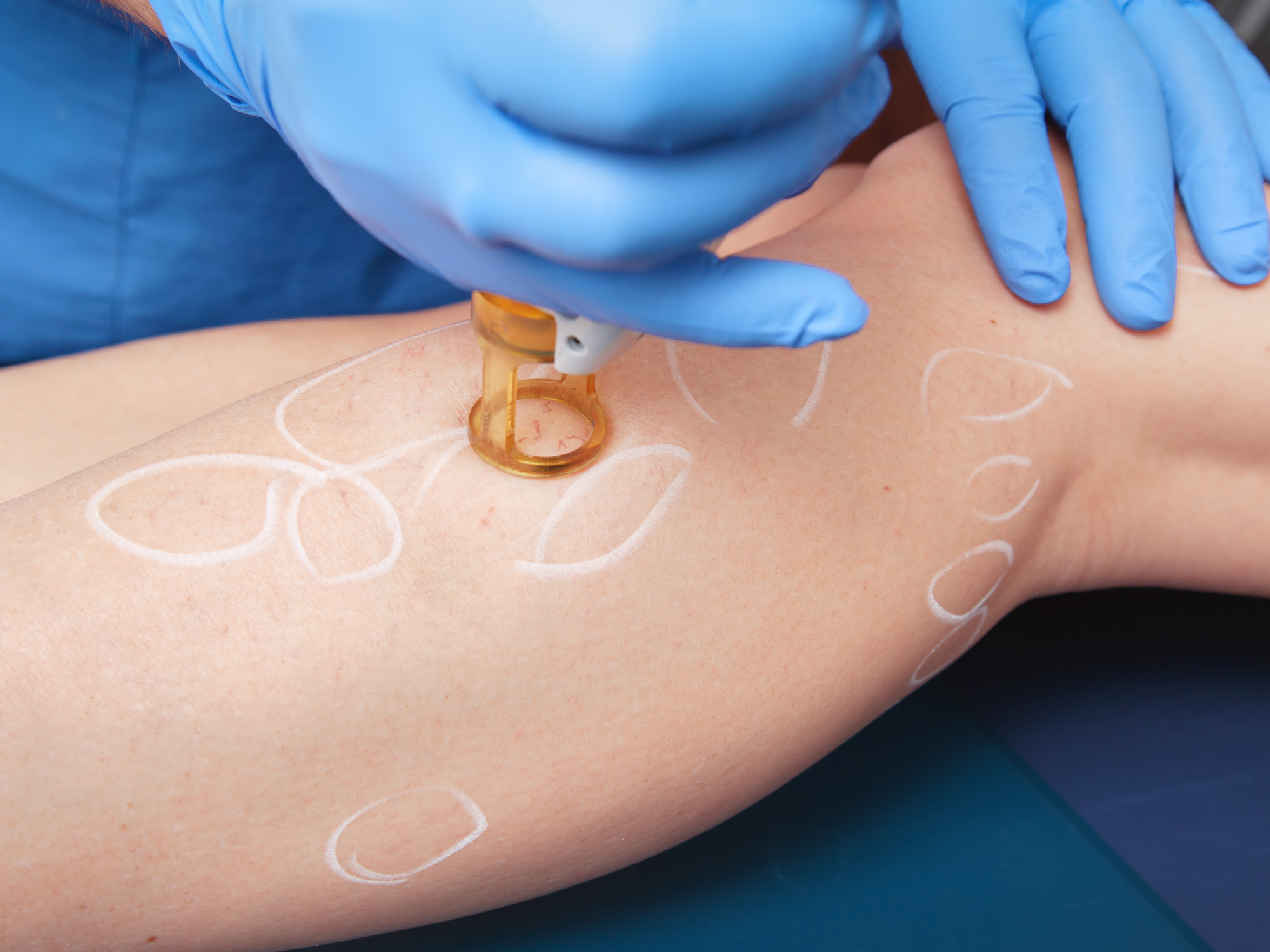 Is Laser Treatment for Varicose Veins Safe?