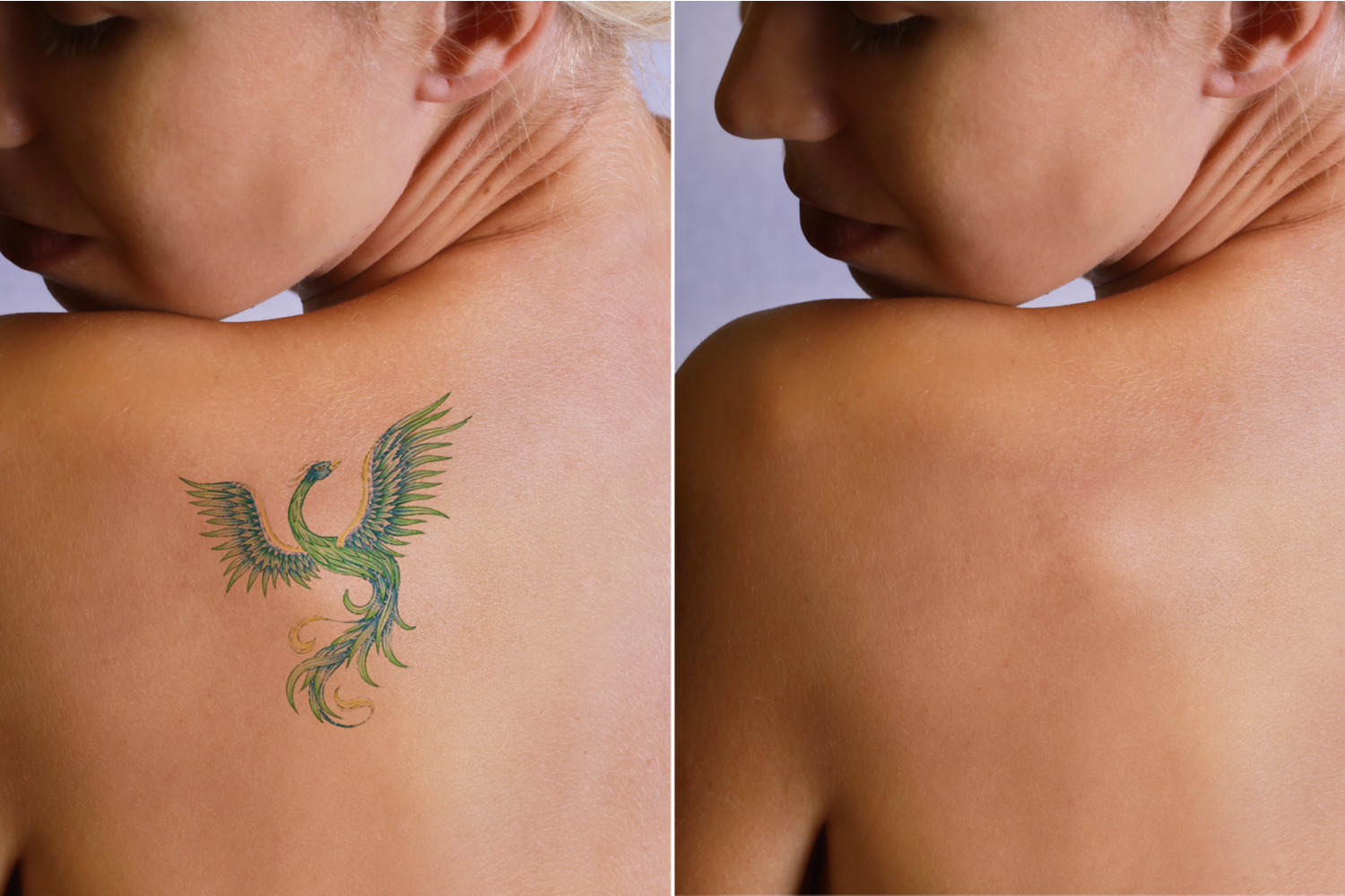 Tips to Maximize or Speed Up the Tattoo Removal Process