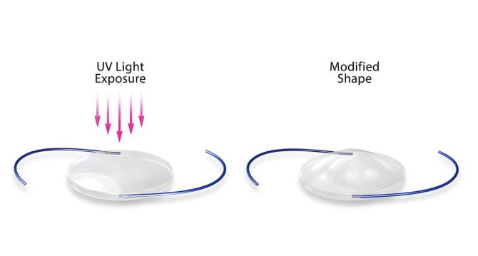 Light Adjustable Lens 2