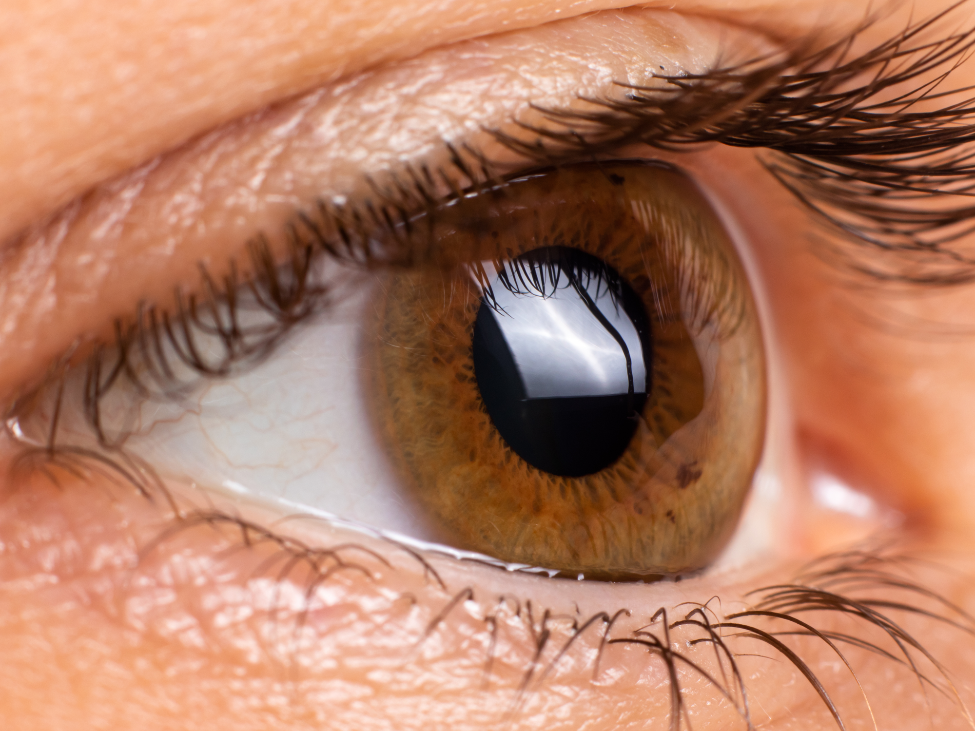 Candidates for a Corneal Transplant
