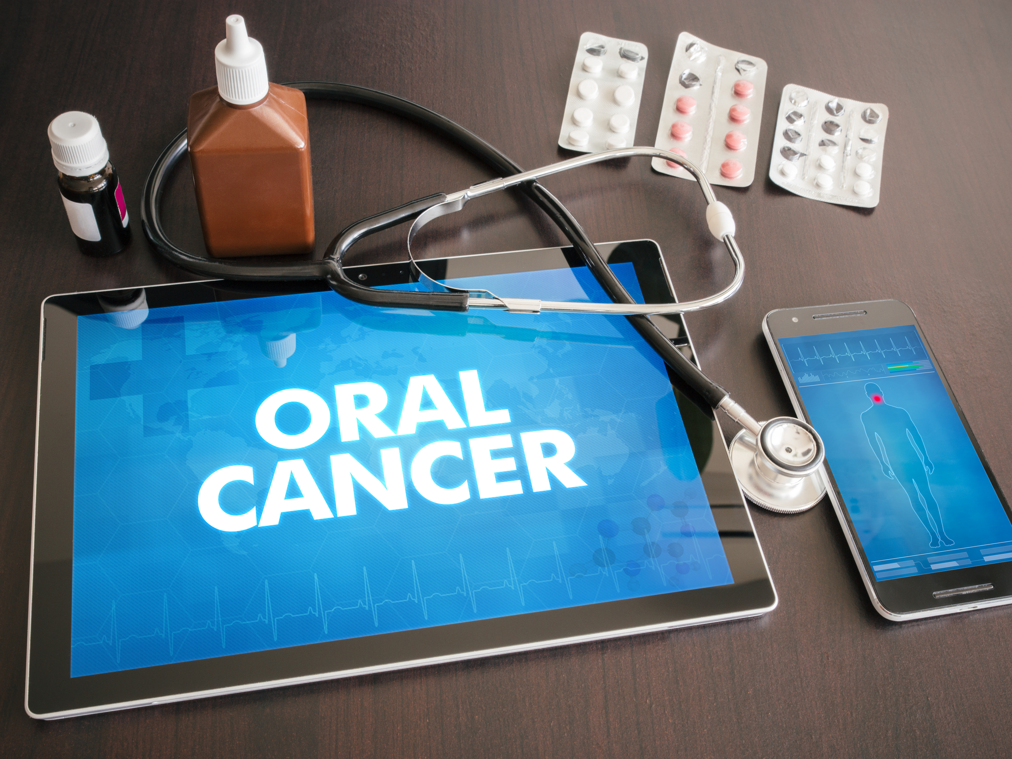 When to Be Screened for Oral Cancer