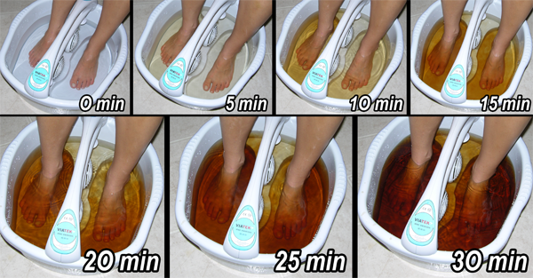 Ionic Foot Detox procedure