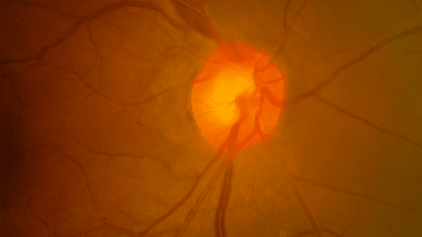 Optic Nerve Abnormalities