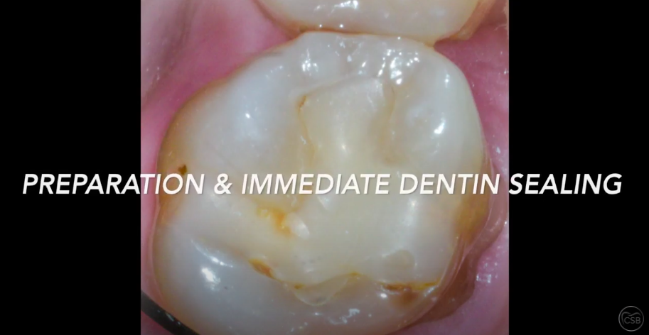 Complete Process of a Ceramic Onlay on Molar Tooth