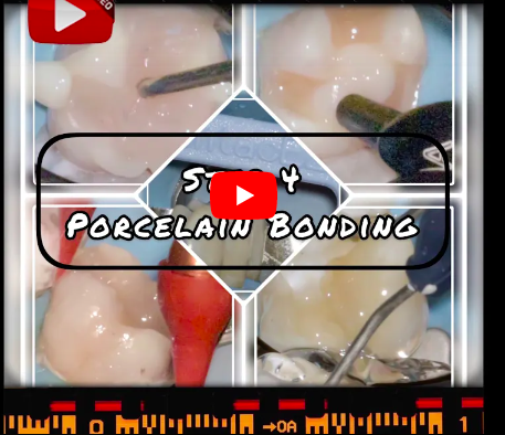 Ceramic Onlay Video Series: 4 of 4 | Delivery of Porcelain Onlay
