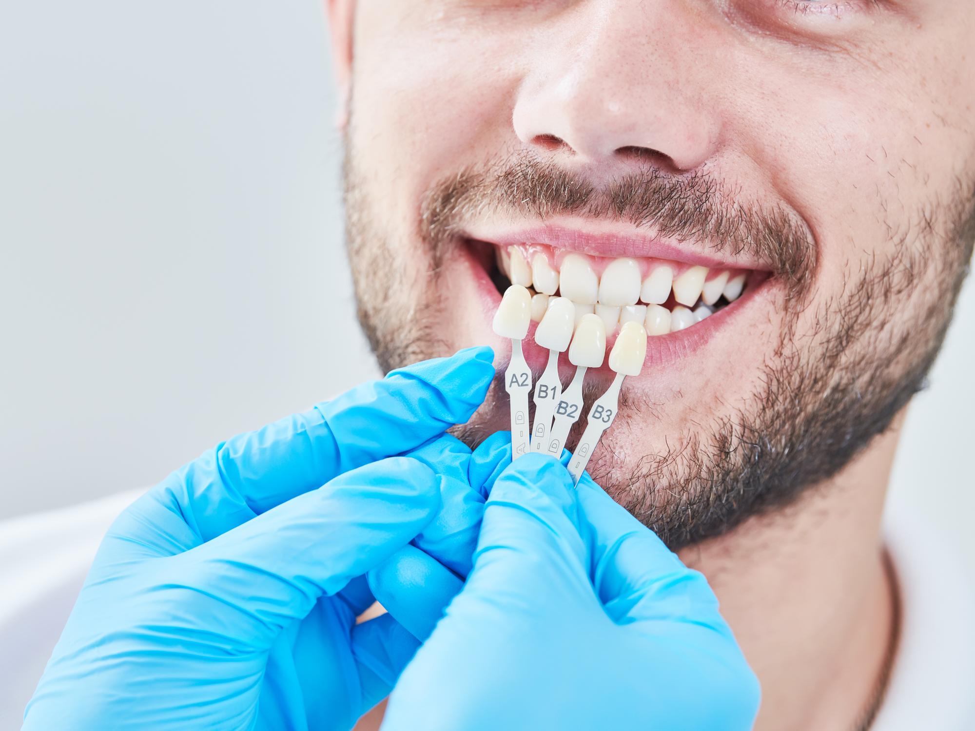 Taking Care of Dental Veneers: Maintenance Tips