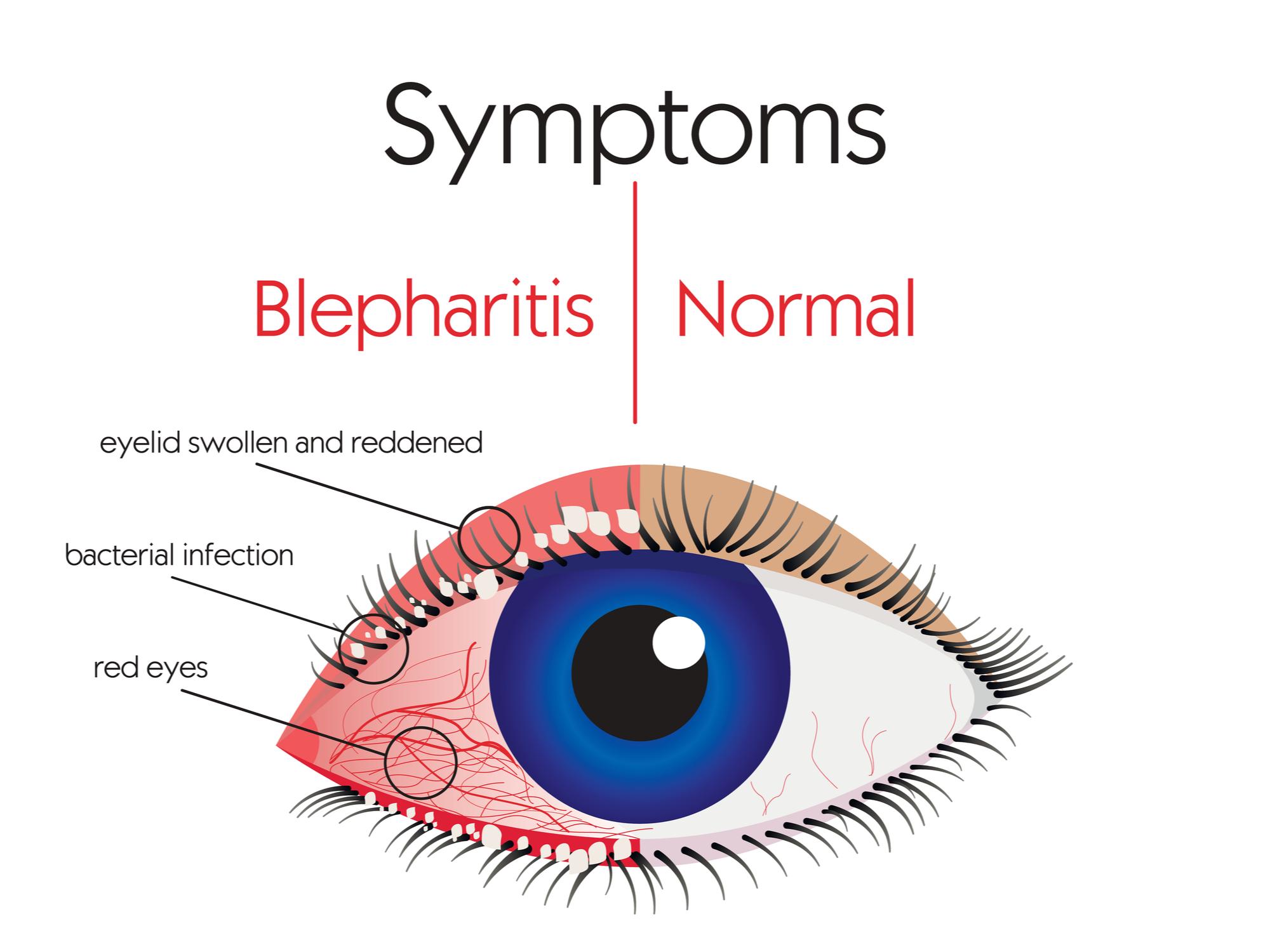 Treating Blepharitis