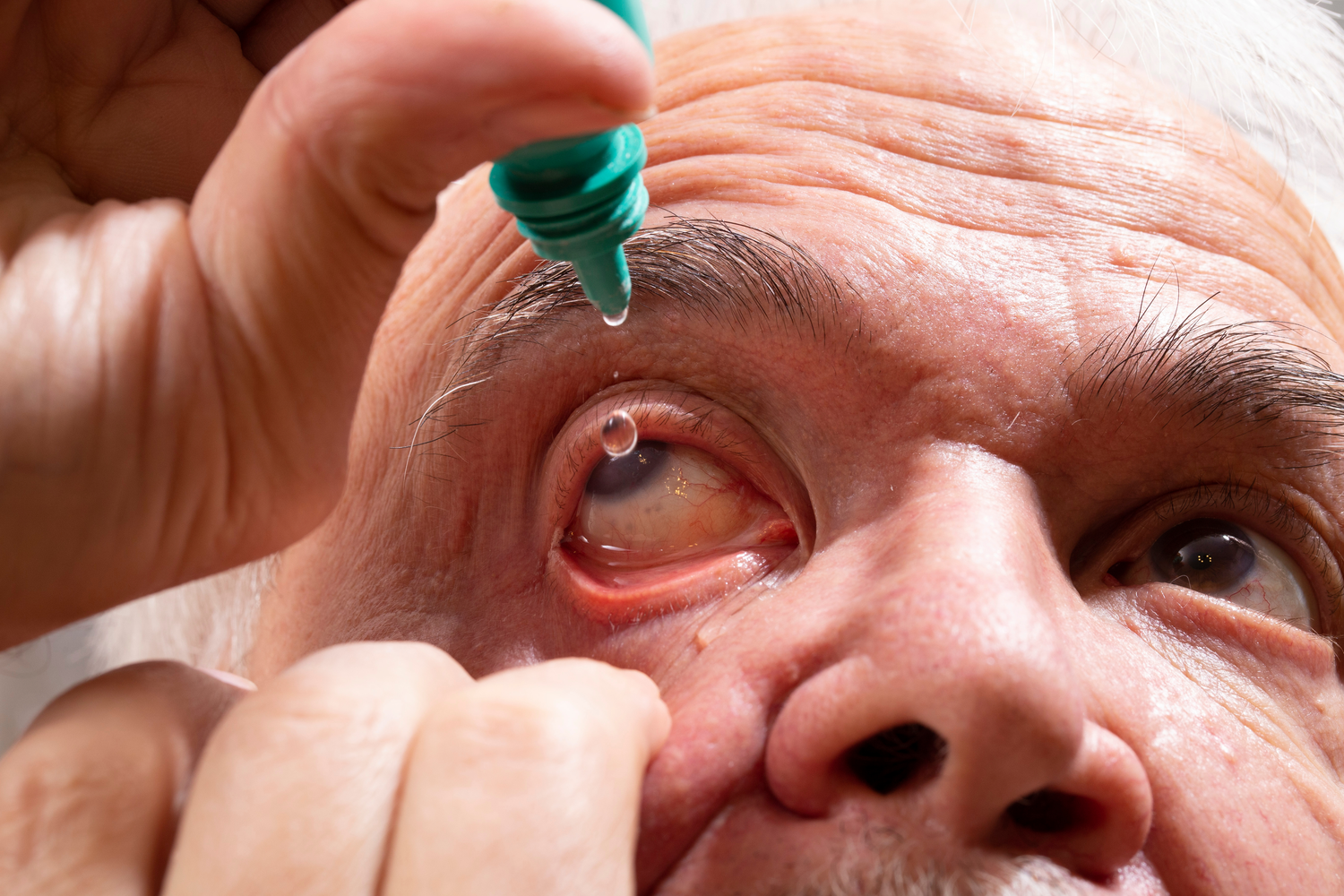 Diagnosing and Care for Glaucoma