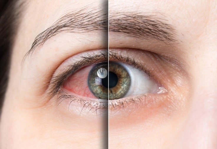 The causes of red and itchy eyes | Optometry | Puyallup, WA