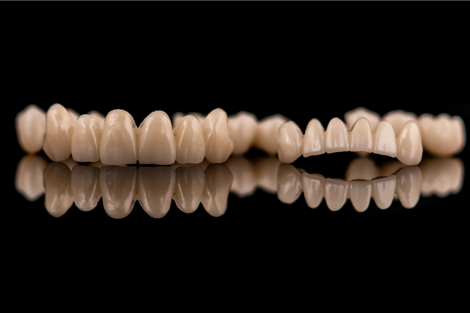 Candidates for Full Mouth Reconstruction