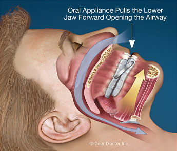 sleep apnea oral appliance