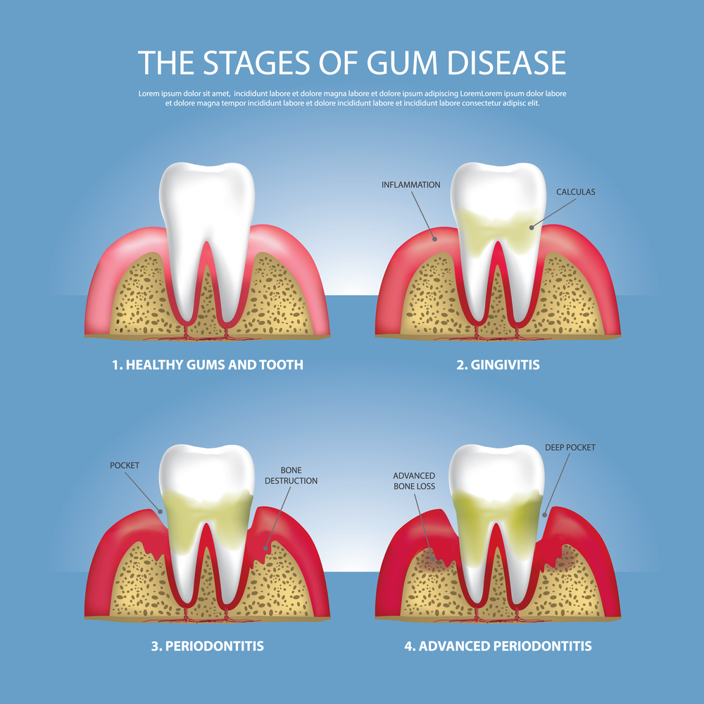 What Are the Different Stages of Gum Disease?