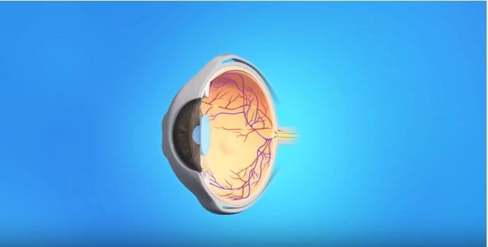 Retinal Angiography