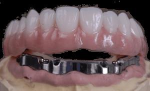 dental overbar denture