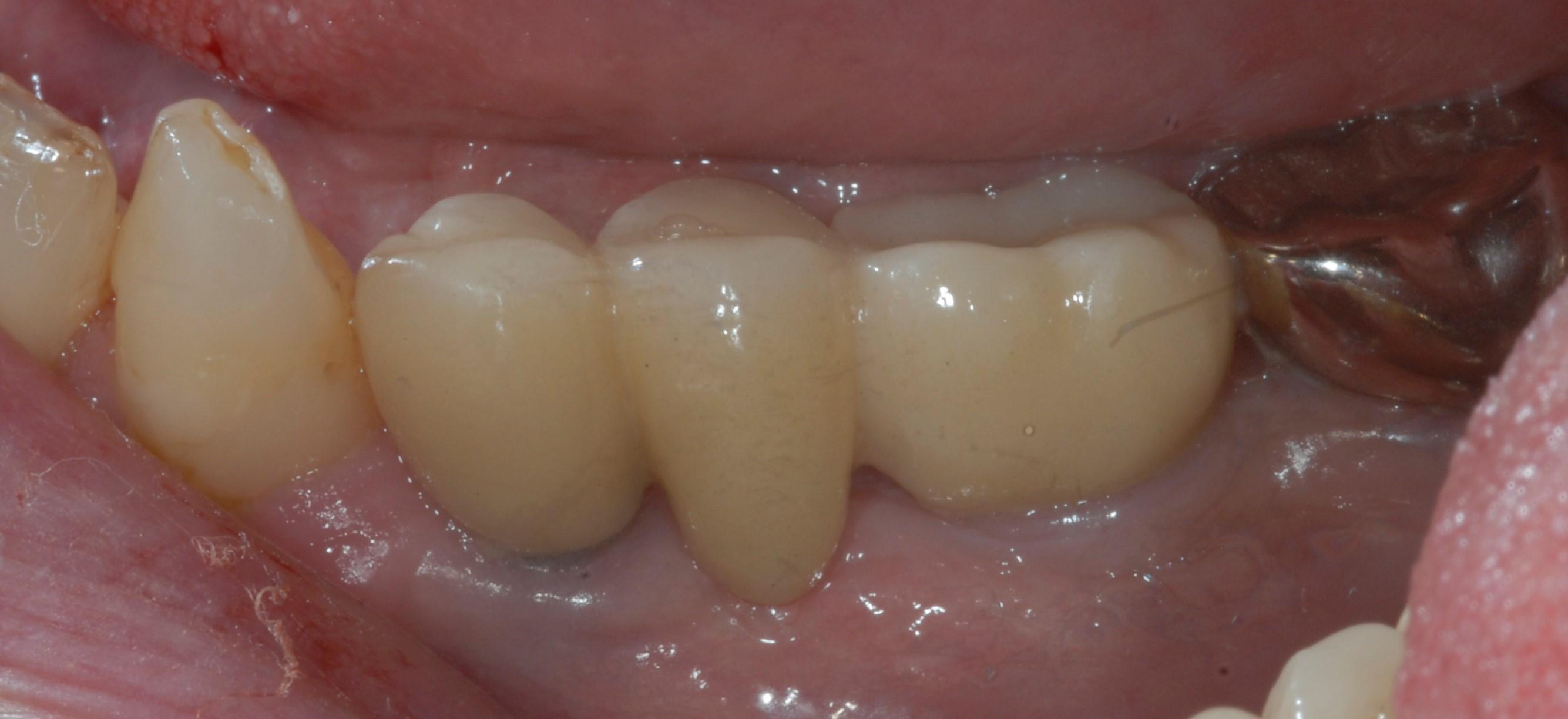 After Implant Bridge