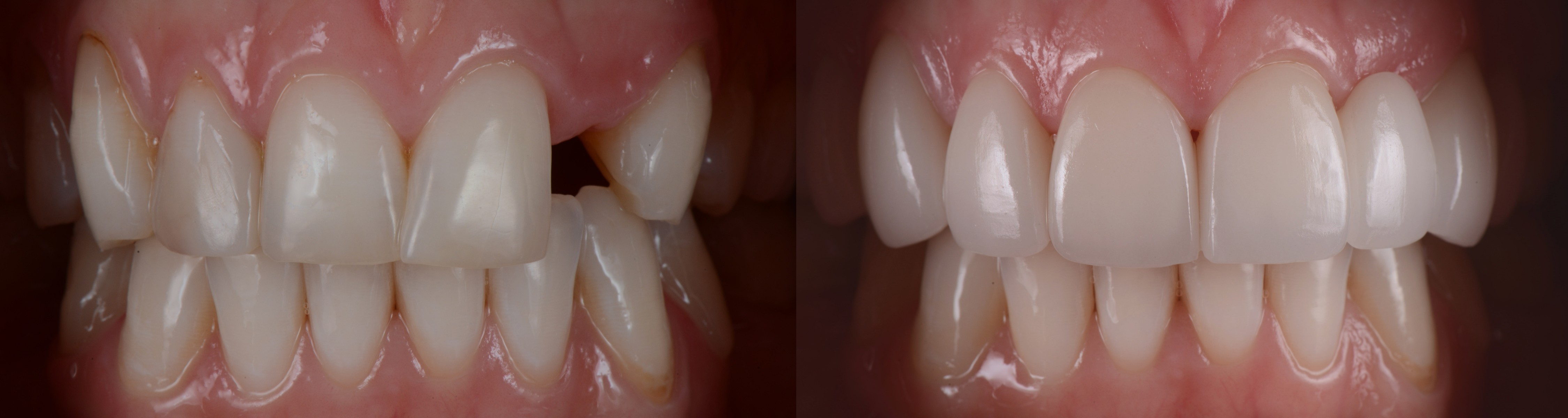 When to Get Single Tooth Replacement Dental Implants