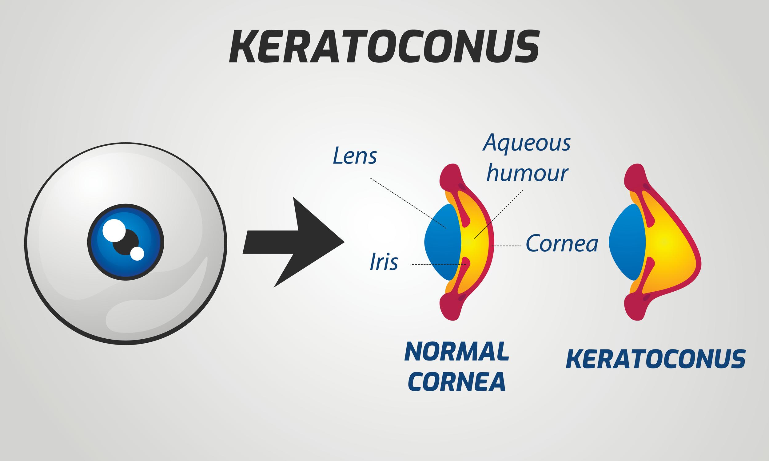 Specialty Contact Lenses to Treat Keratoconus