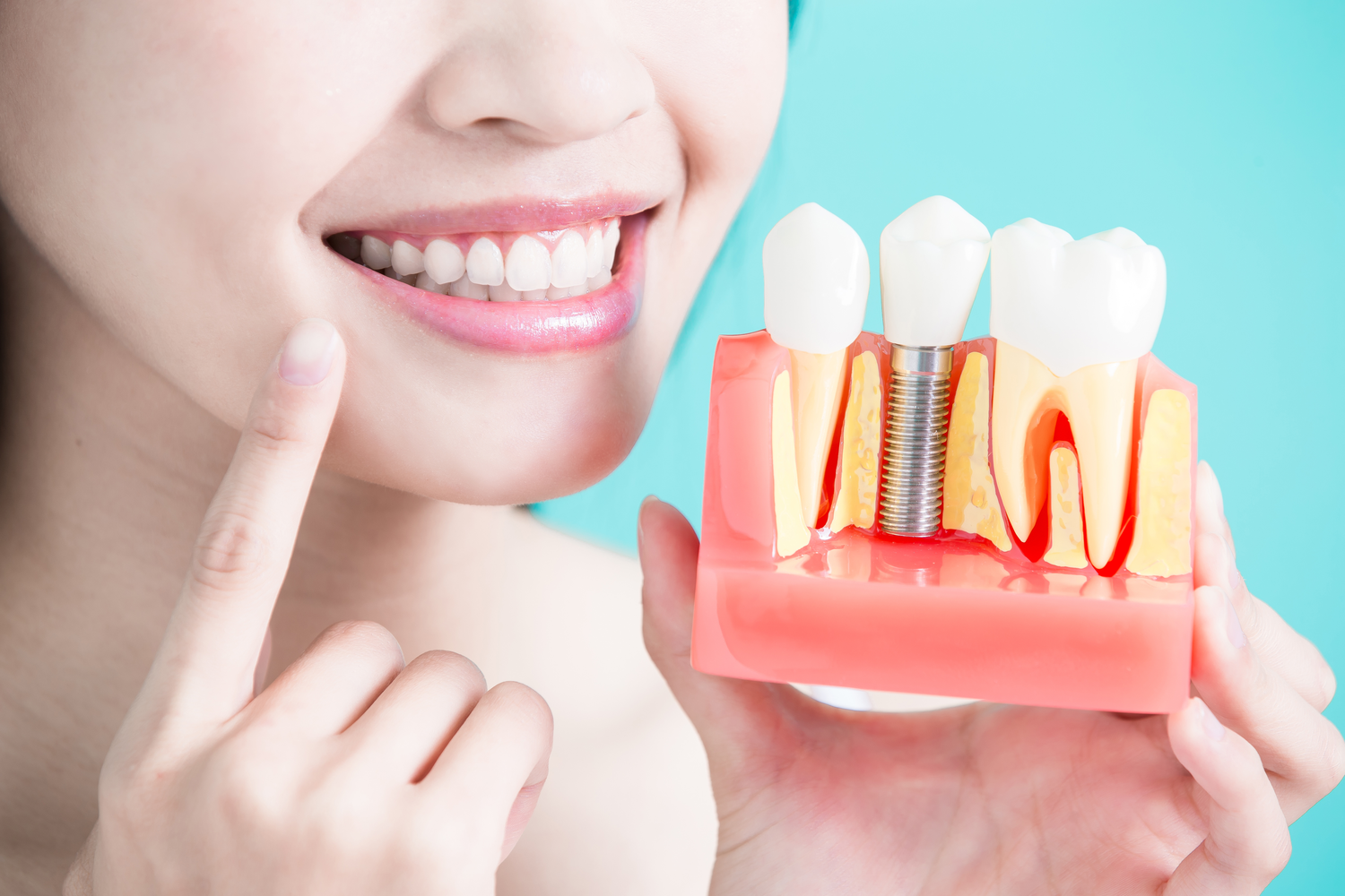 Why You Should Replace Dentures with Dental Implants