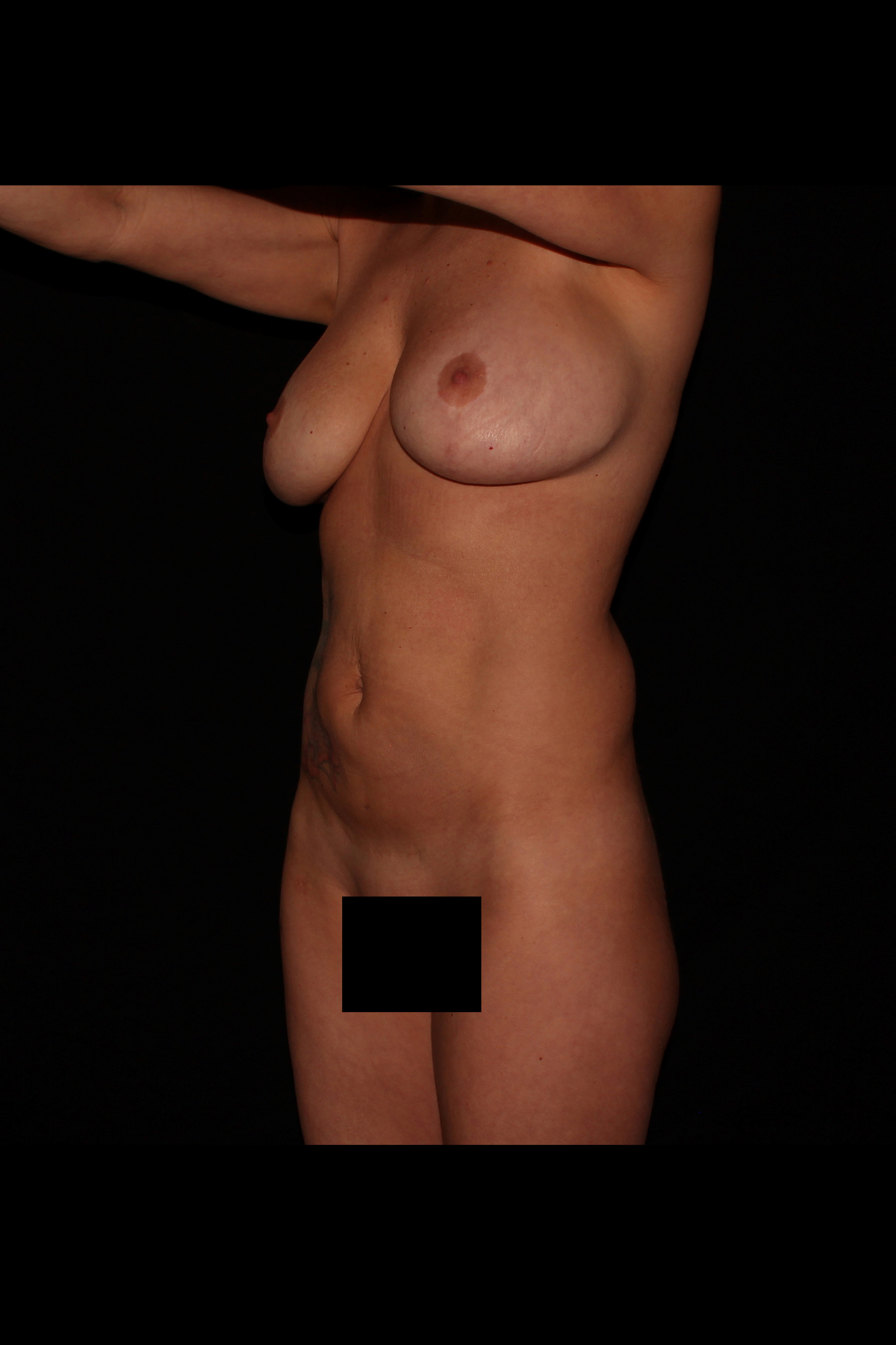 Before Ab Etching - Mom of 4! 6 pack look