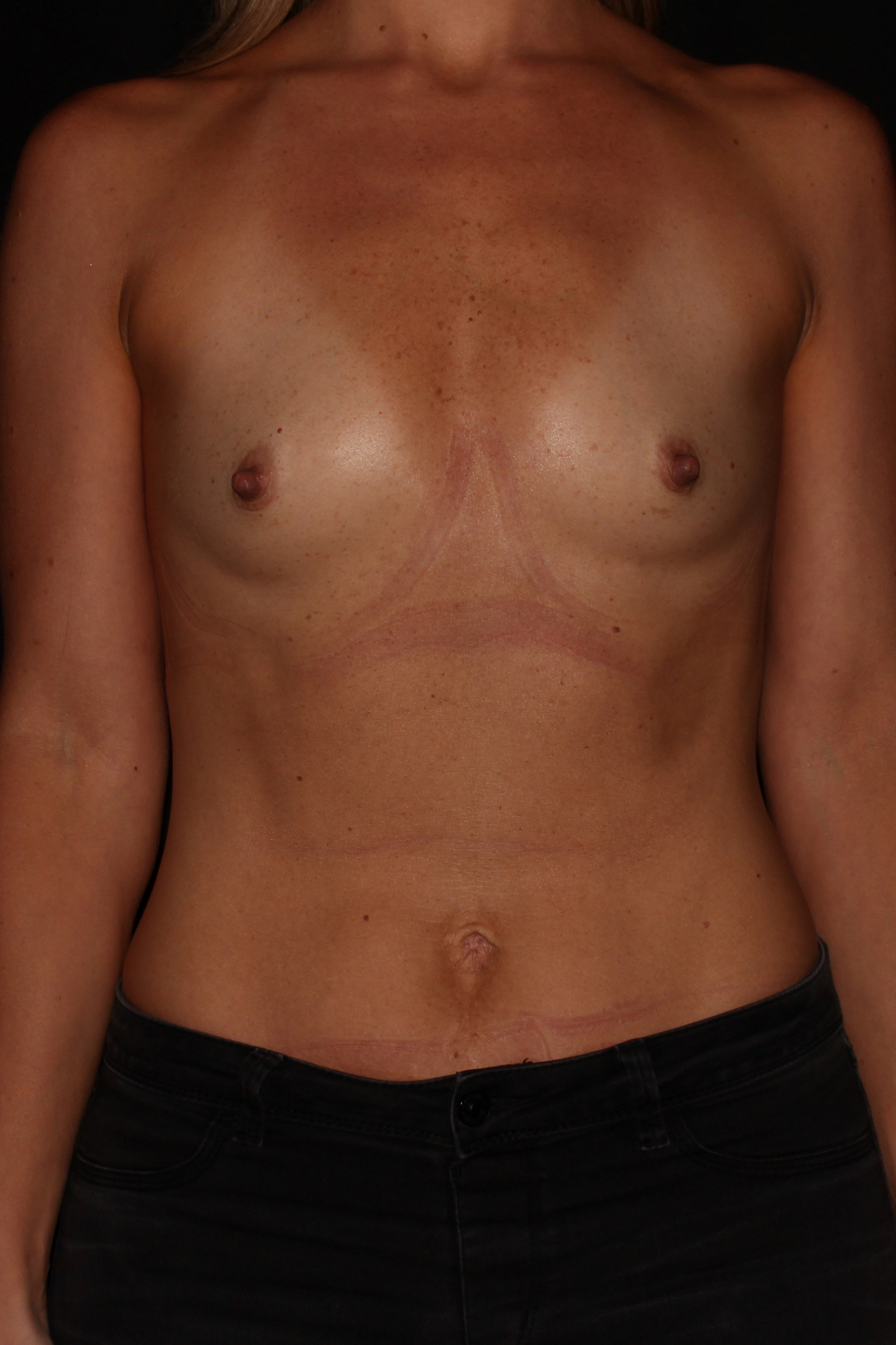 Before Breast Augmentation - Front