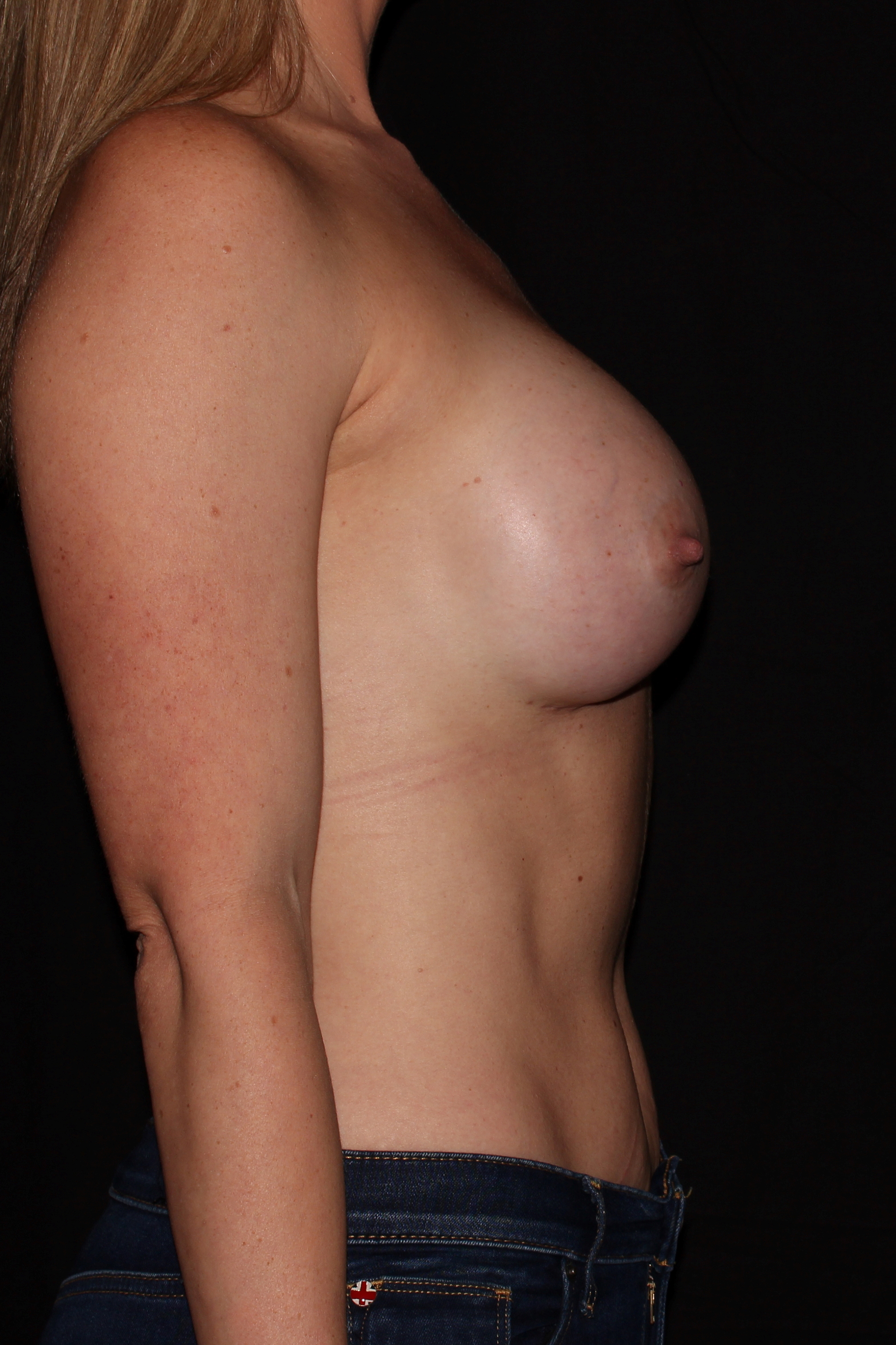 After Breast Augmentation - Side