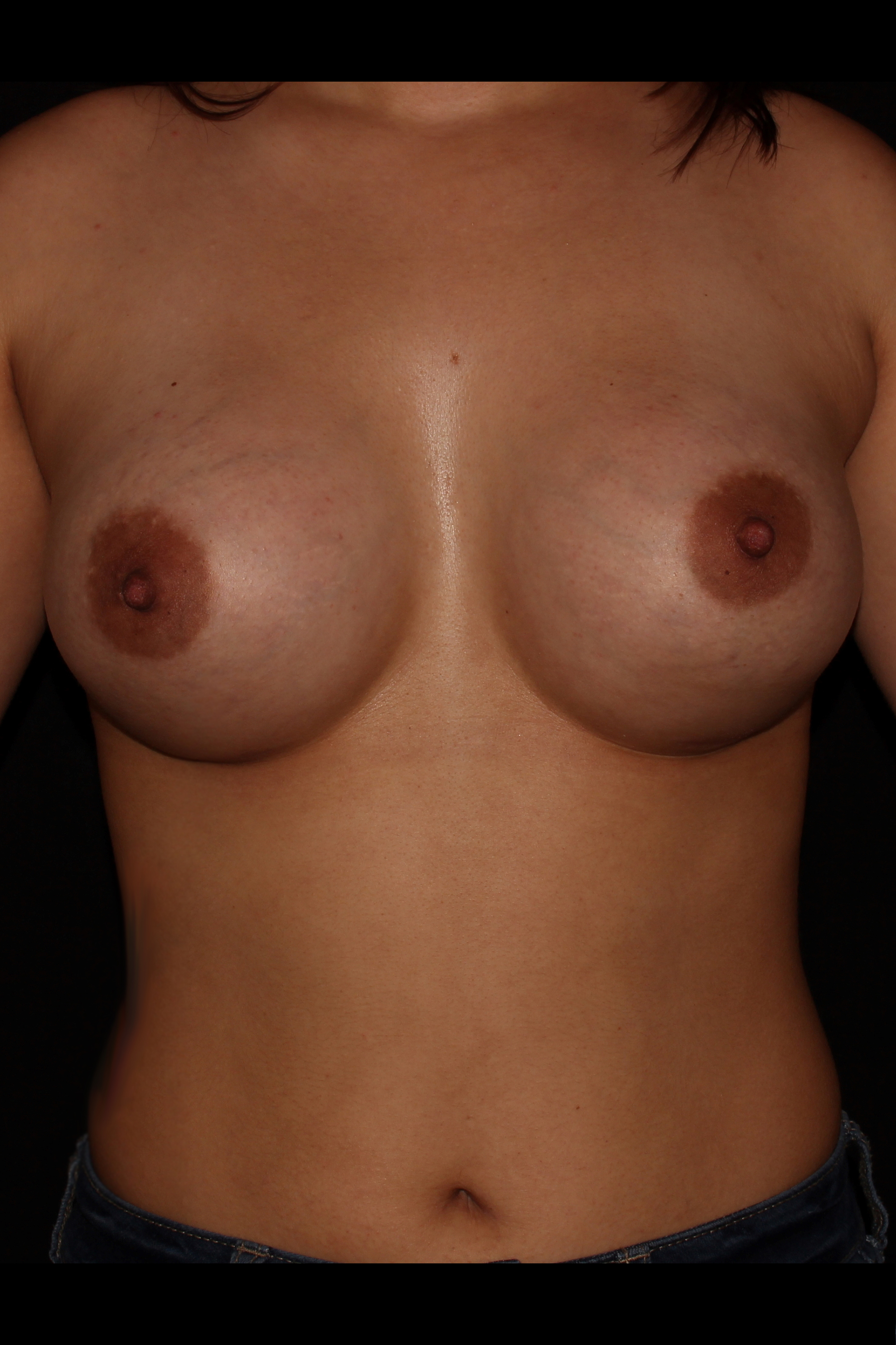 After Breast Augmentation - Front