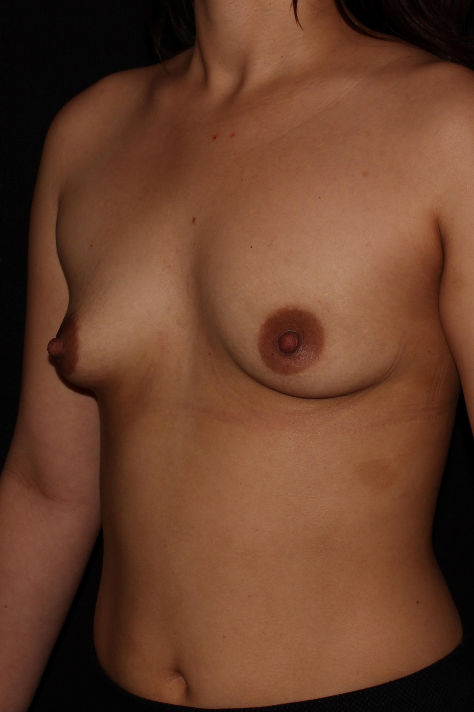 Before Breast Augmentation - Oblique 1