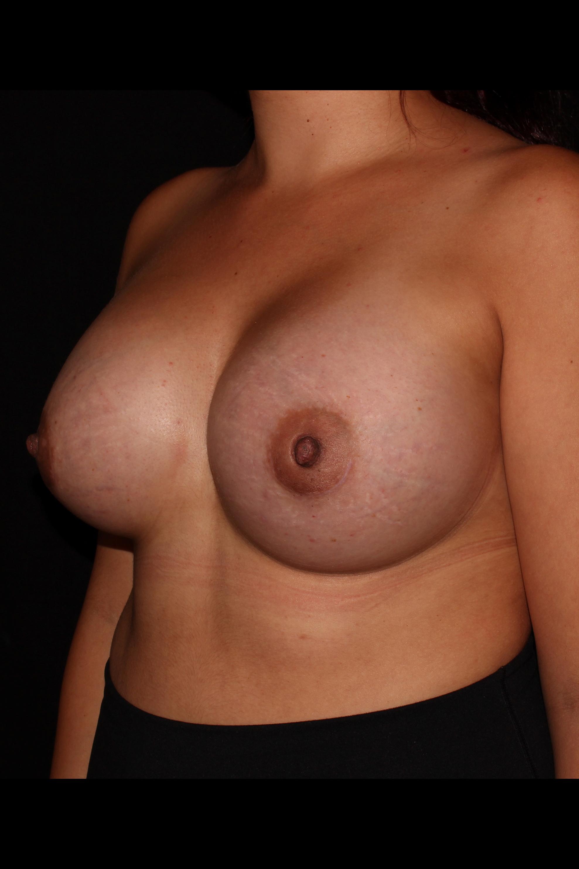 After Breast Augmentation - Oblique 1