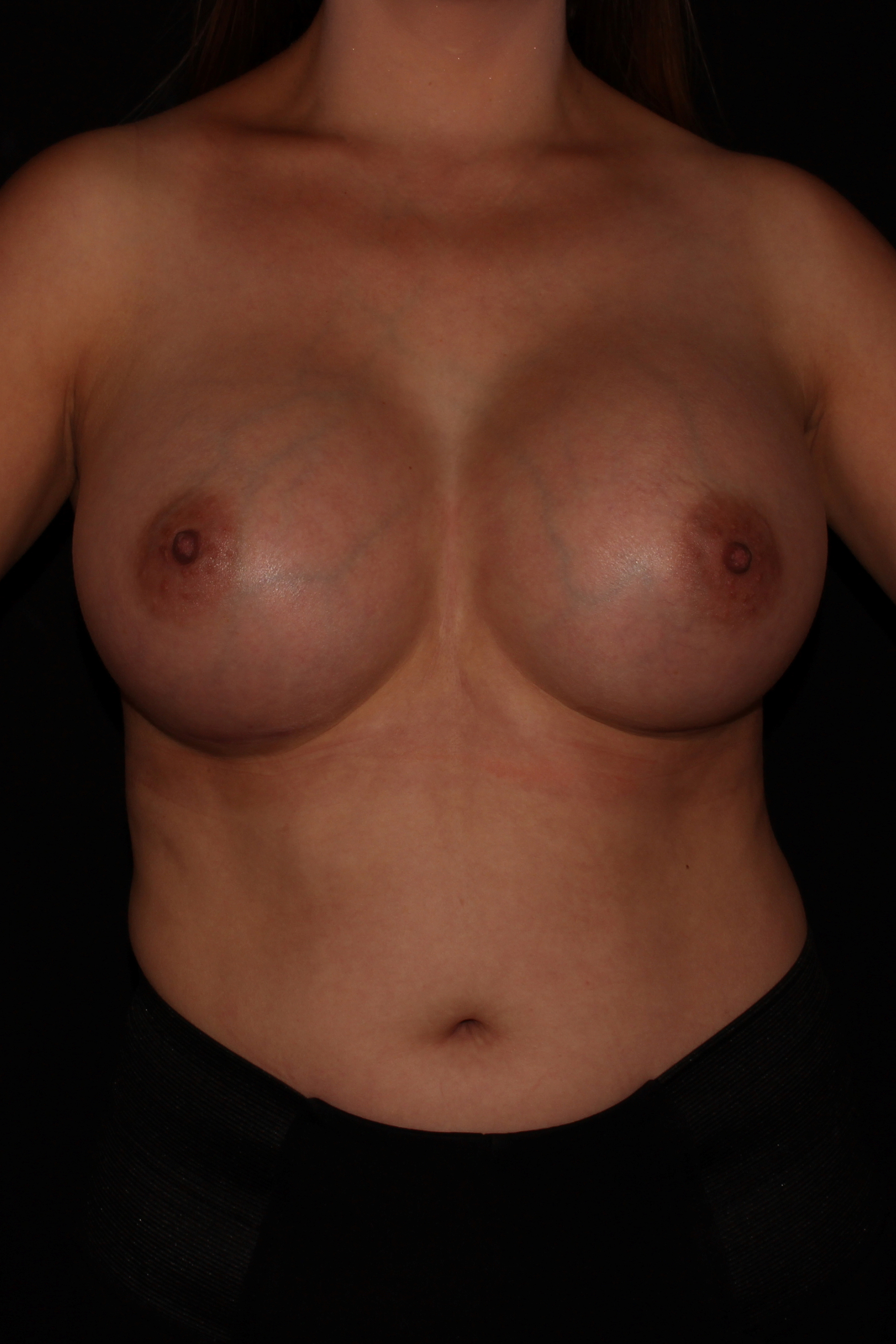 After Breast Augmentation - 550cc high profile silicone implants