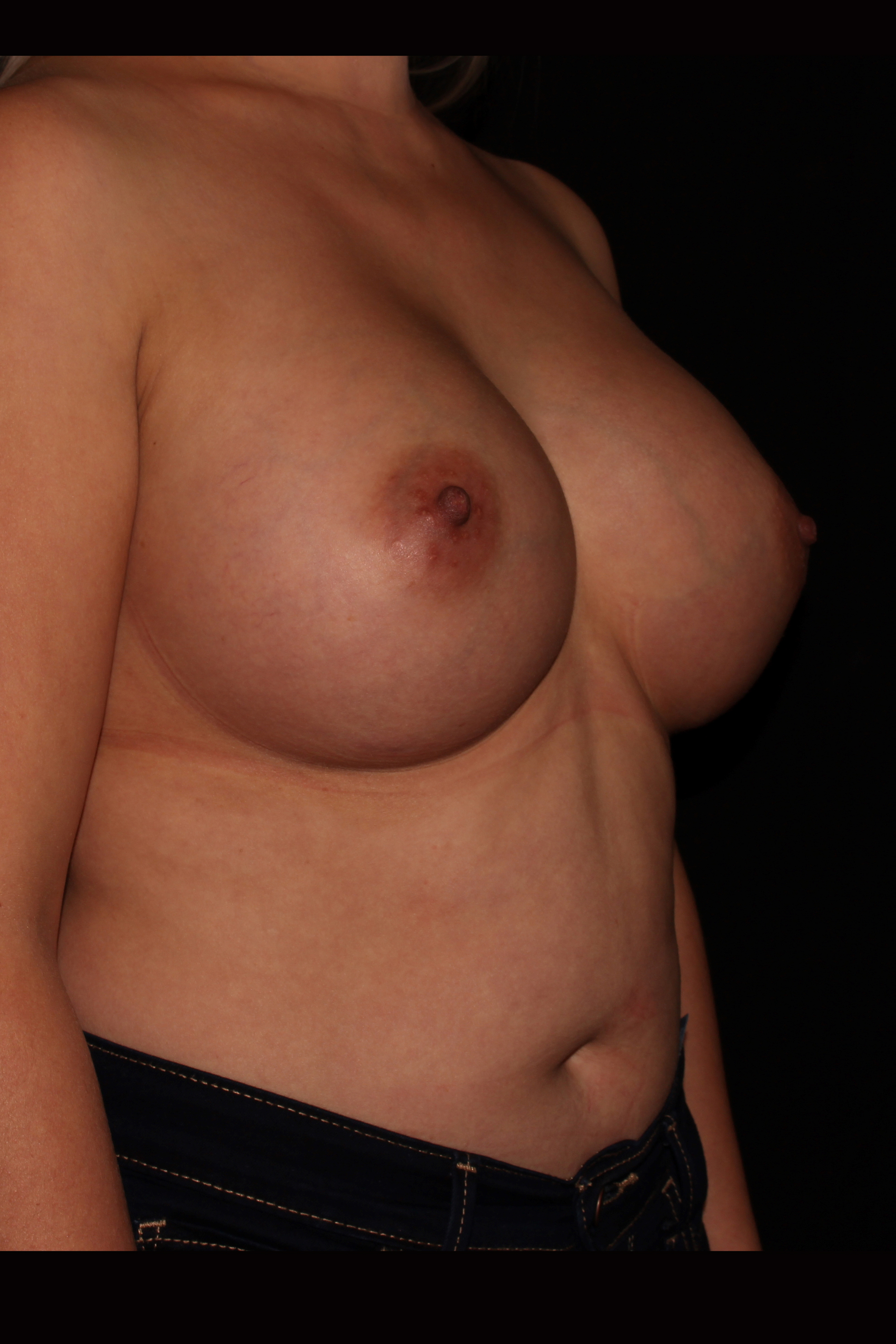 After Breast Augmentation - Oblique