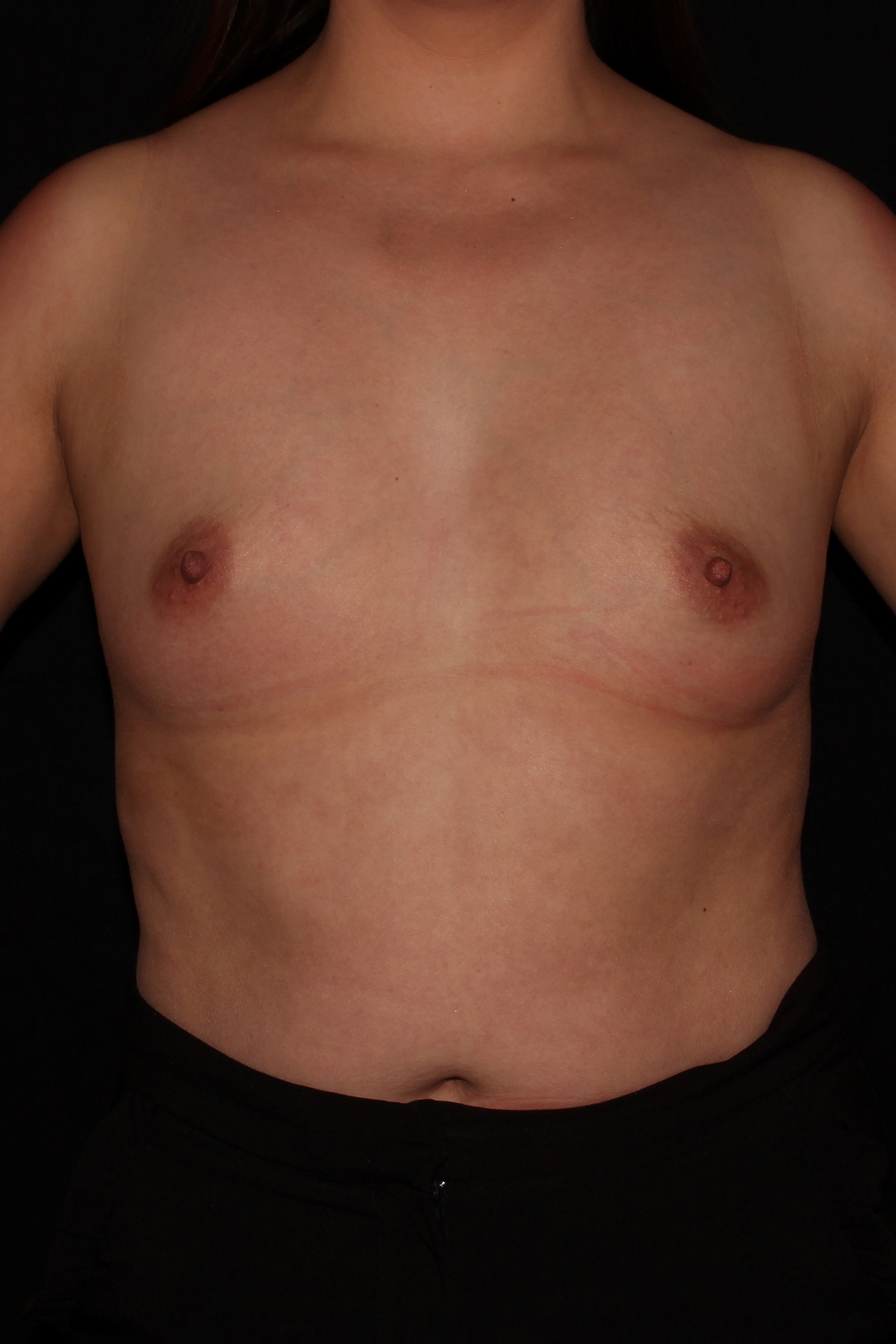 Before Breast Augmentation - 550cc high profile silicone implants