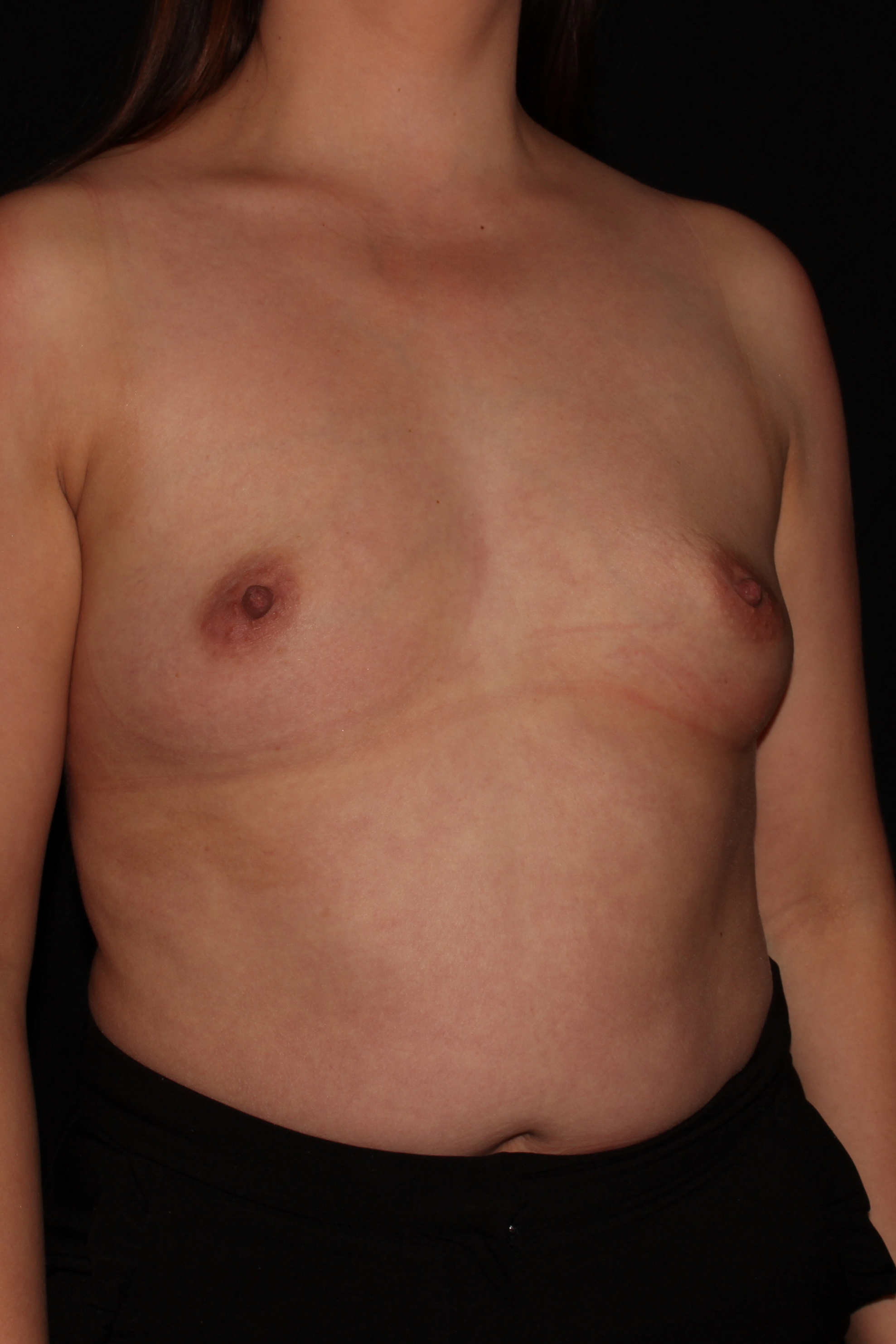 Before Breast Augmentation - Oblique
