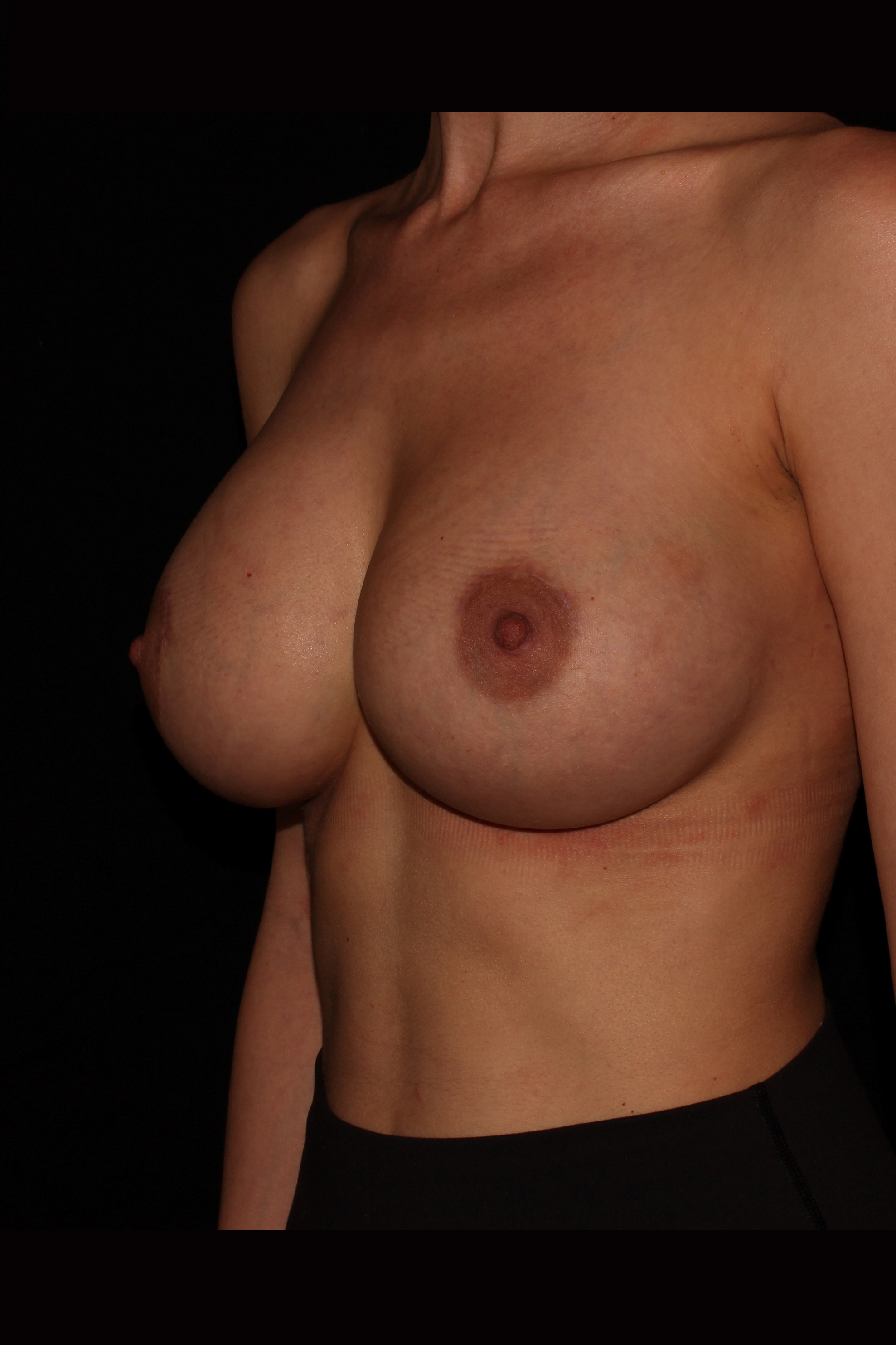 After Breast Augmentation - Oblique 2