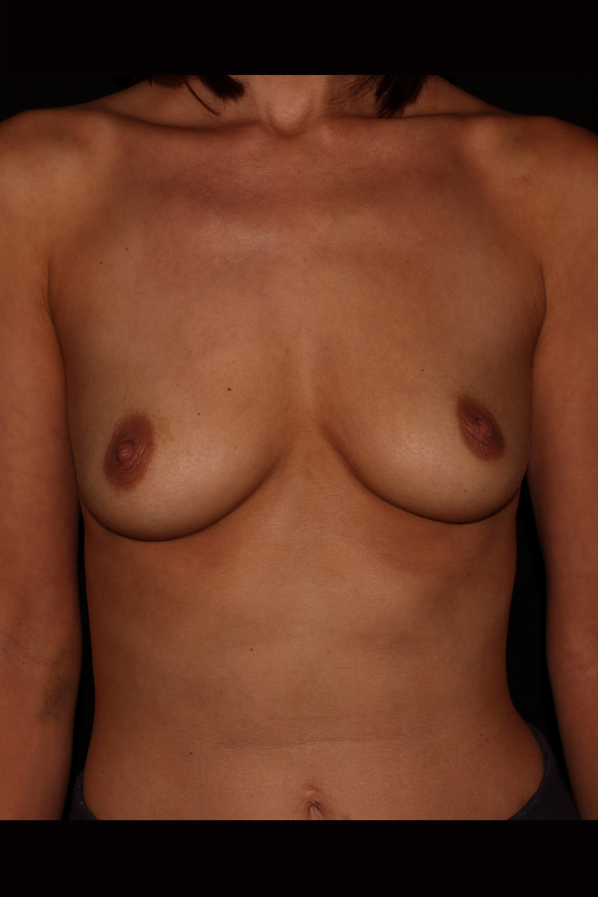 Before Breast Augmentation - 455cc moderate profile silicone implants